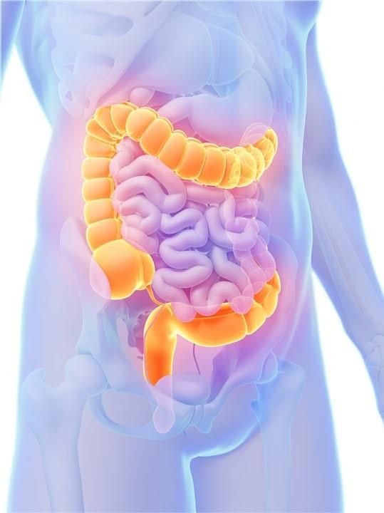 Be Aware of Colon Cancer Symptoms