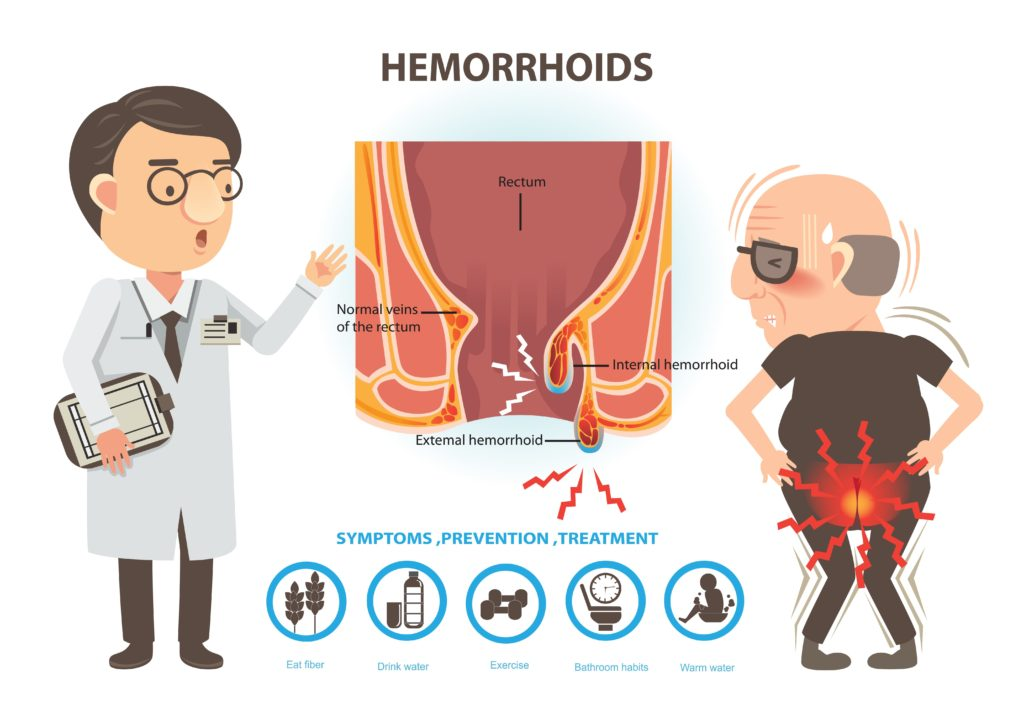 Hemorrhoids Causes Understood
