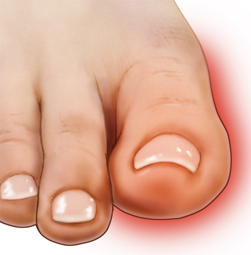 The effectiveness of the Long Island fungus toenail treatment