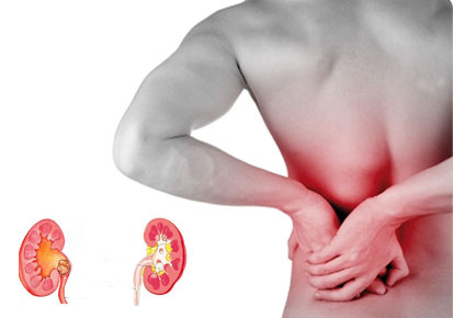Knowing The Signs Of Kidney Stones